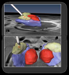 3d scan of brain